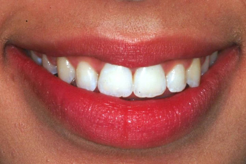 skander ellouze orthodontics